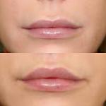 powiększenie ust lip-lift