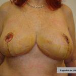 podniesienie piersi