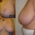 mniejsze piersi