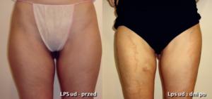odsysanie tłuszczu | liposukcja
