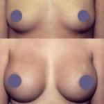 powiększanie piersi powiększanie biustu
