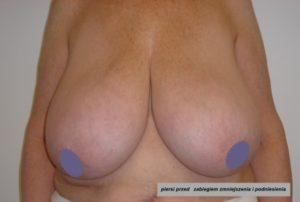 redukcja piersi mastopeksja