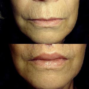 liplift powiększenie ust